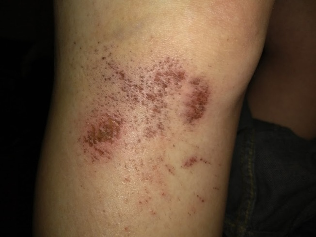 road-rash